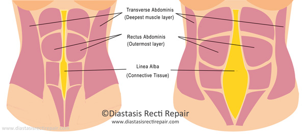 Source: www.diastasisrectirepair.com (with permission)