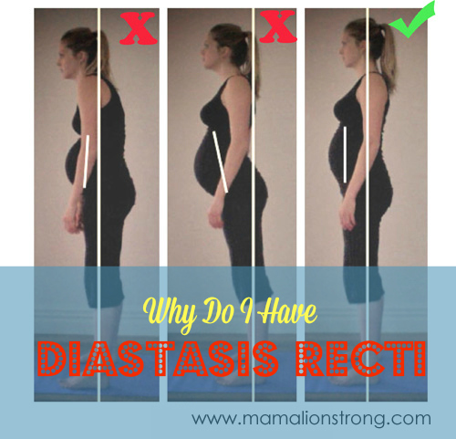 Why Do I Still Have My Post-Baby Tummy? - Diastasis Recti (Part 1)